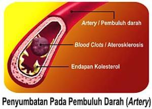 penyempitan pembuluh darah